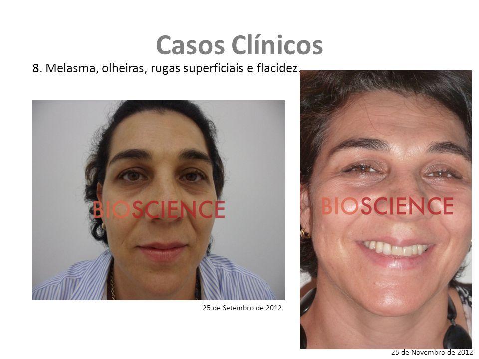 Casos Clínicos 8. Melasma, olheiras, rugas superficiais e flacidez.