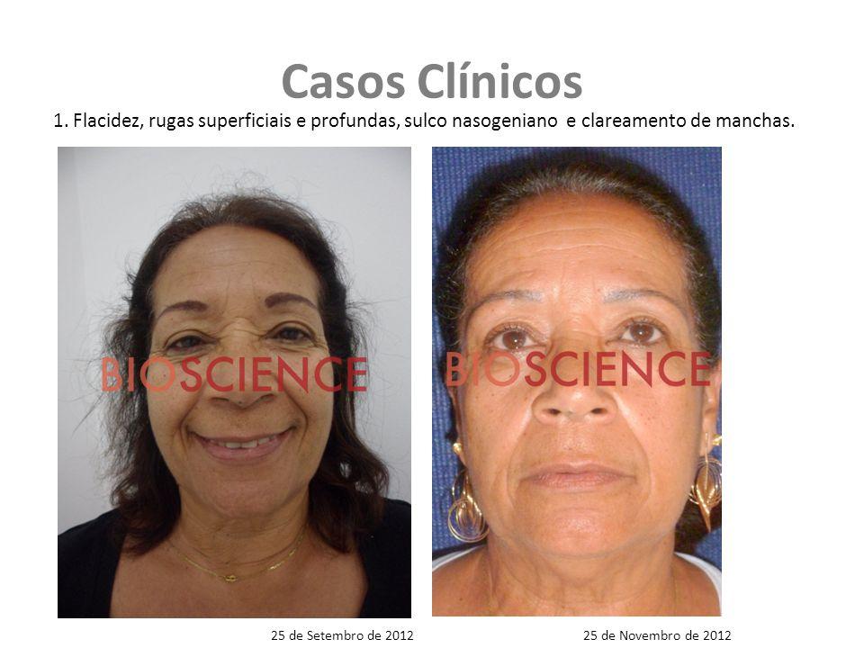 Casos Clínicos 1. Flacidez, rugas superficiais e profundas, sulco nasogeniano e clareamento de manchas.