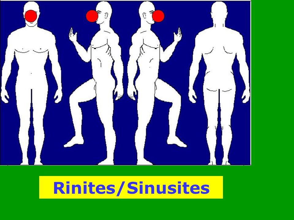 Rinites/Sinusites