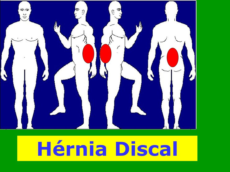 Hérnia Discal