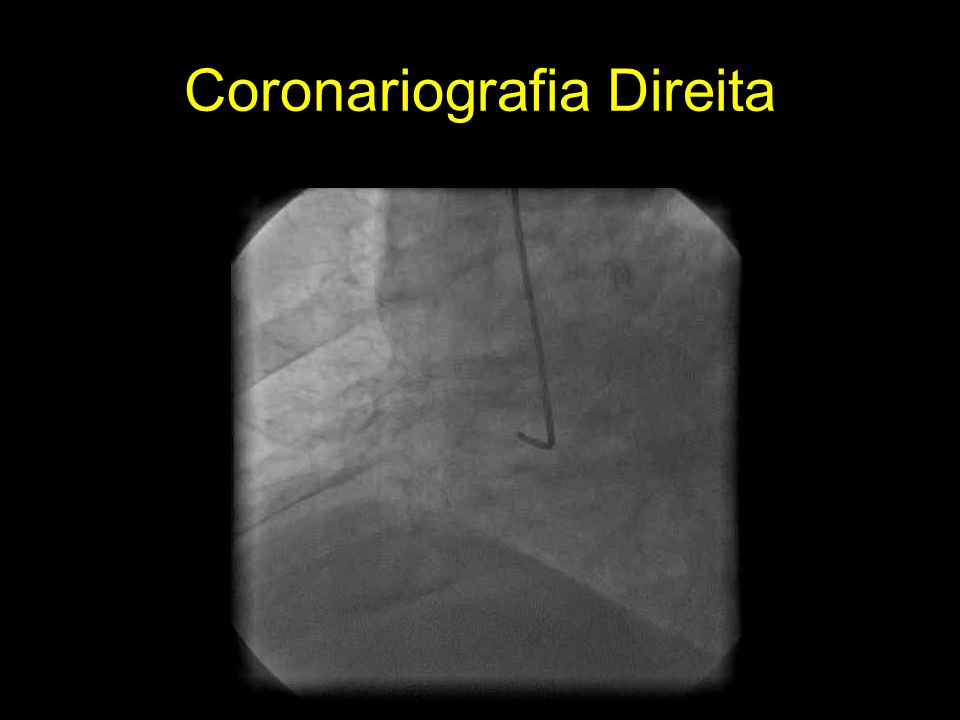 Coronariografia Direita