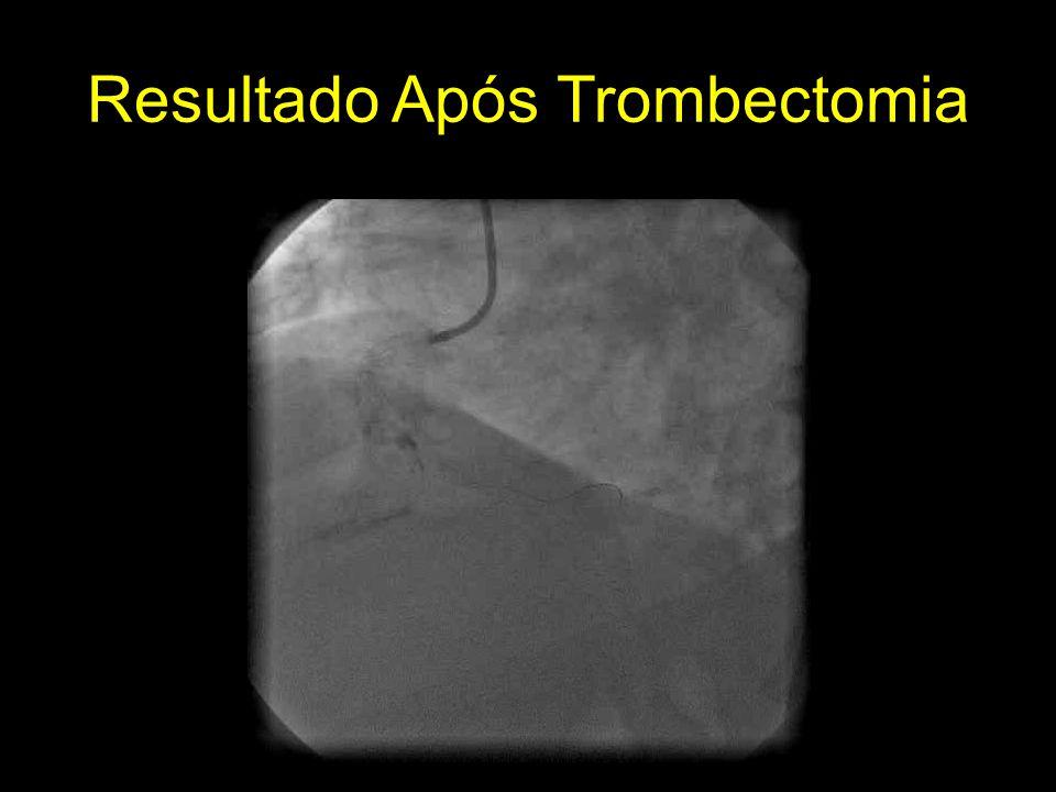 Resultado Após Trombectomia