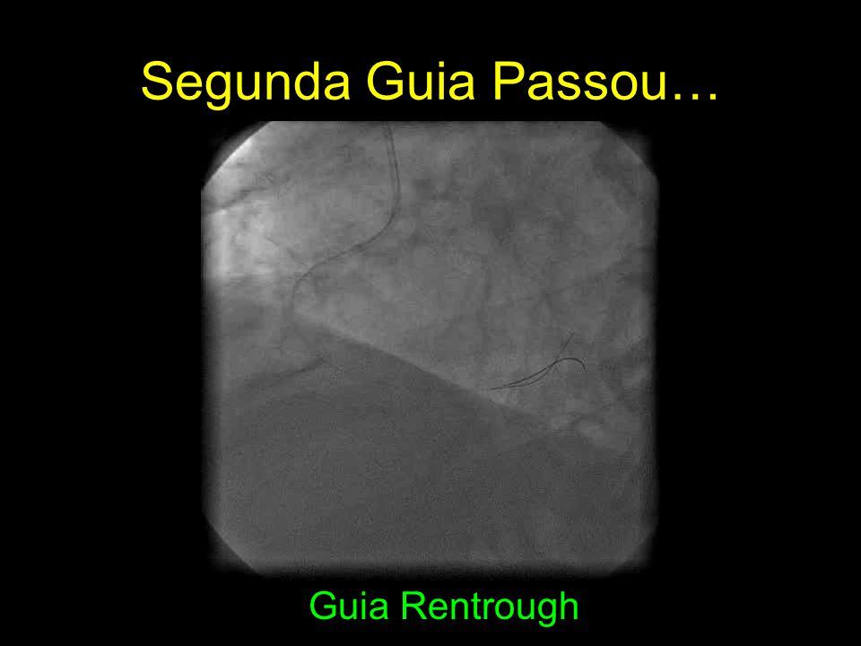 Segunda Guia Passou… Guia Rentrough