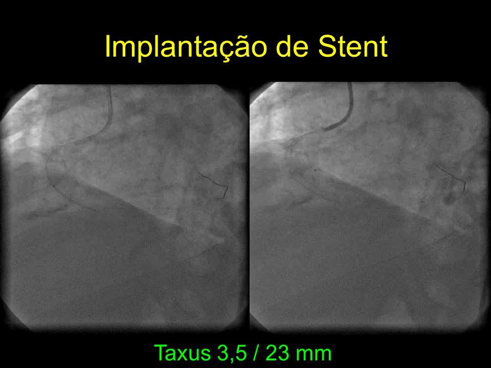 Implantação de Stent Taxus 3,5 / 23 mm