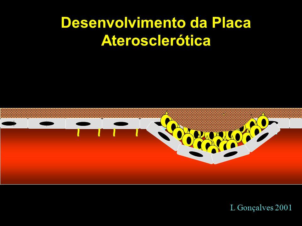 Desenvolvimento da Placa Aterosclerótica