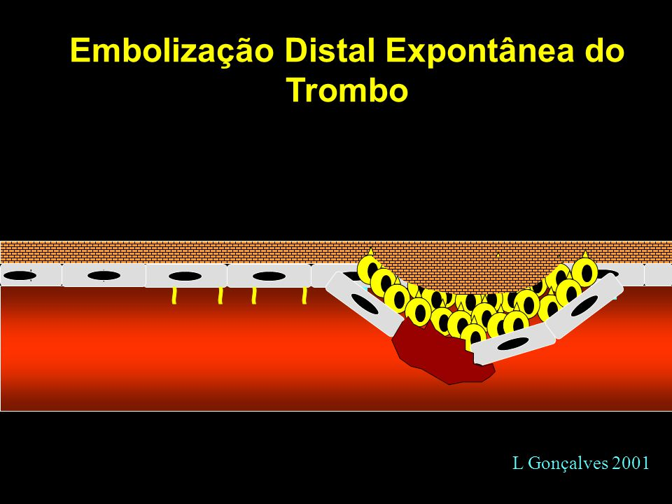 Embolização Distal Expontânea do Trombo
