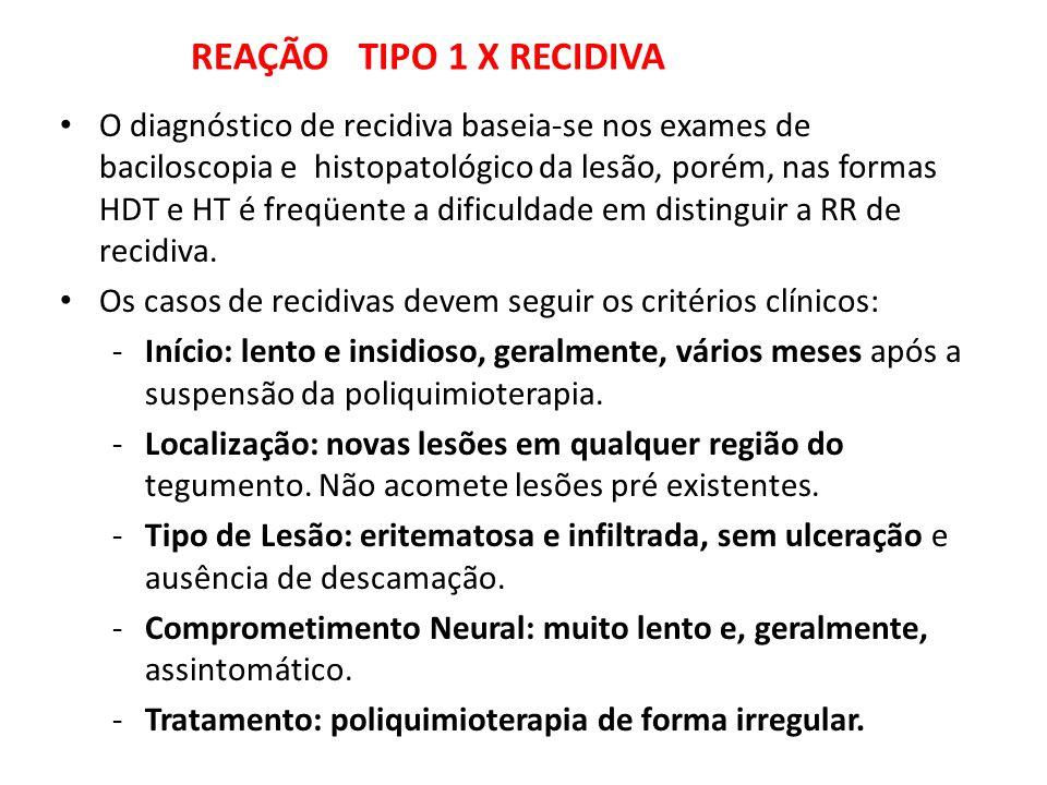 REAÇÃO TIPO 1 X RECIDIVA