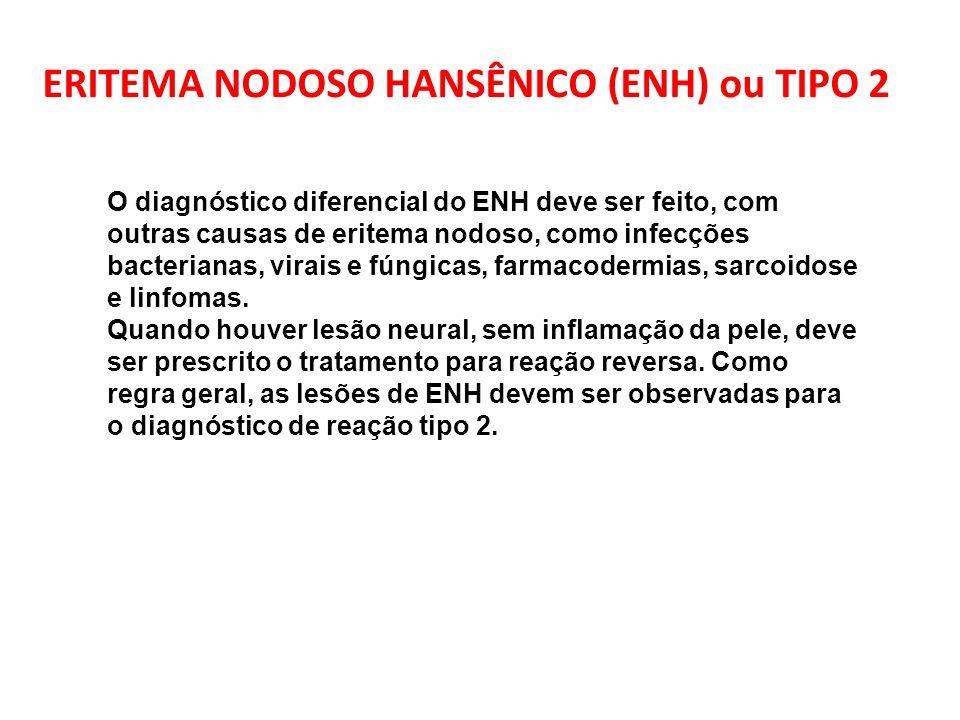 ERITEMA NODOSO HANSÊNICO (ENH) ou TIPO 2