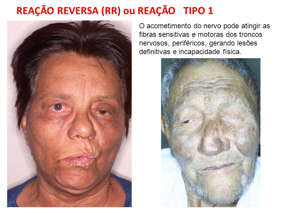 REAÇÃO REVERSA (RR) ou REAÇÃO TIPO 1