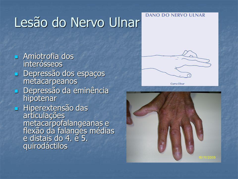 Lesão do Nervo Ulnar Amiotrofia dos interósseos