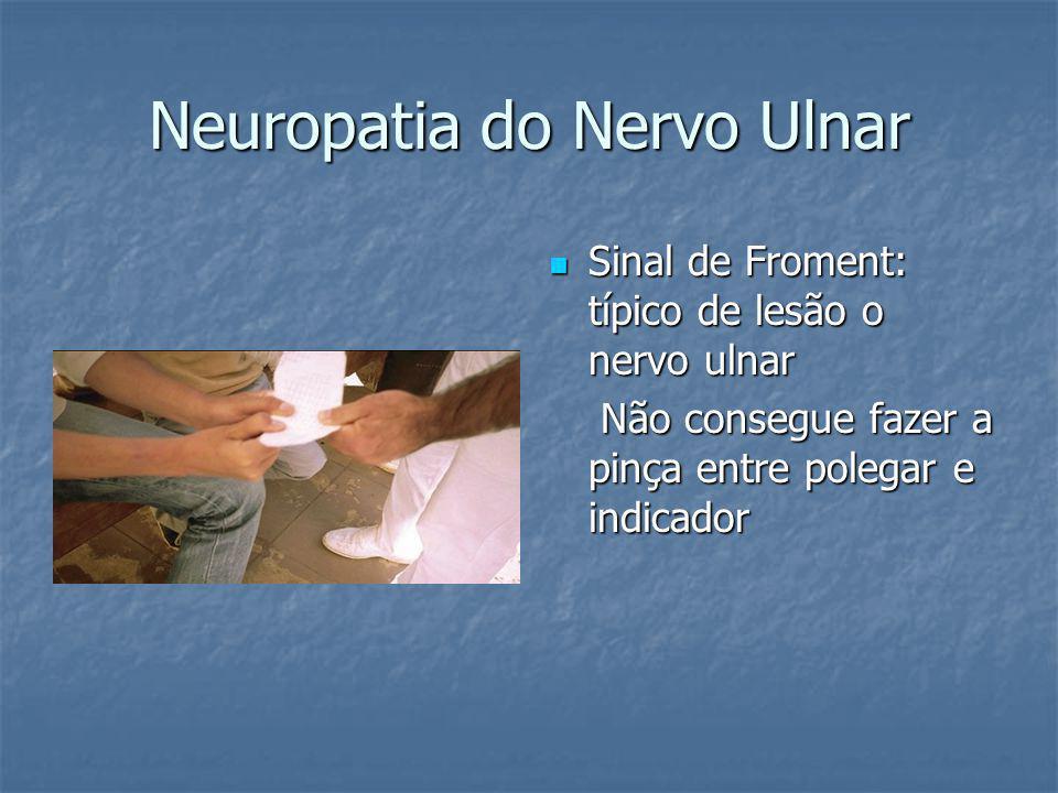 Neuropatia do Nervo Ulnar