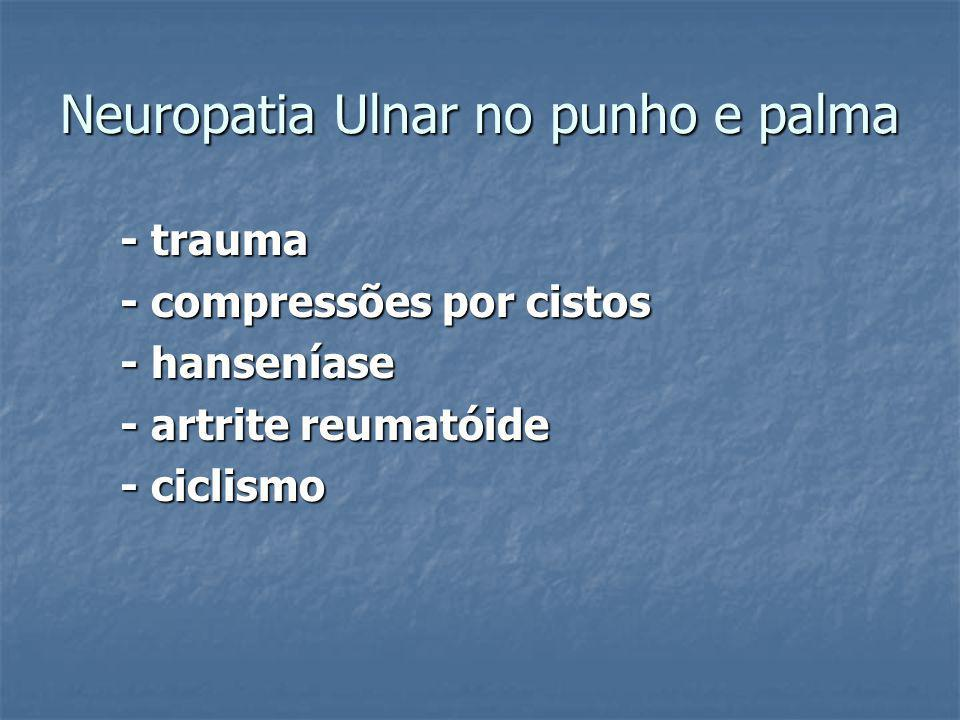 Neuropatia Ulnar no punho e palma