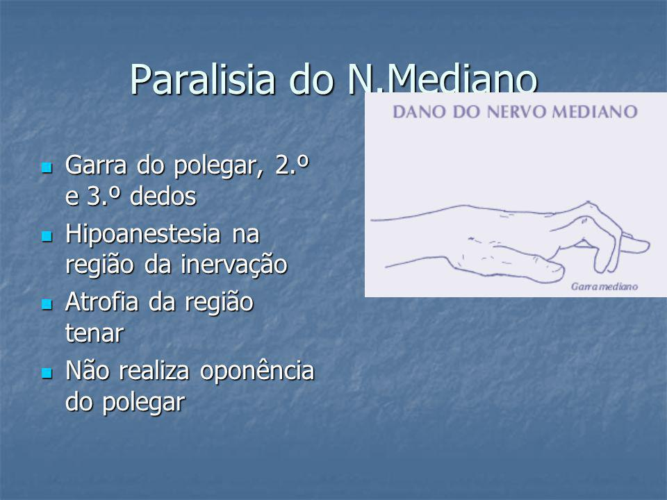 Paralisia do N.Mediano Garra do polegar, 2.º e 3.º dedos
