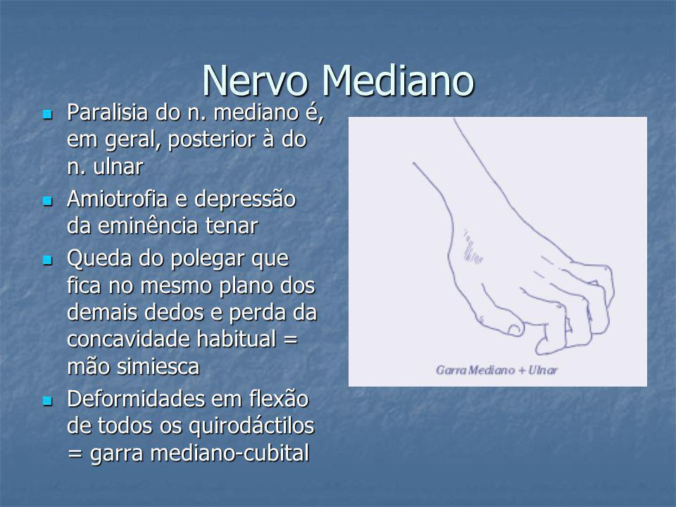 Nervo Mediano Paralisia do n. mediano é, em geral, posterior à do n. ulnar. Amiotrofia e depressão da eminência tenar.