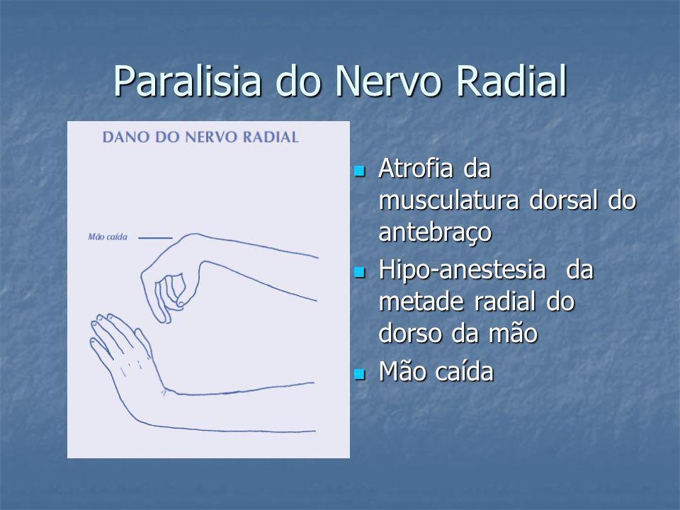 Paralisia do Nervo Radial