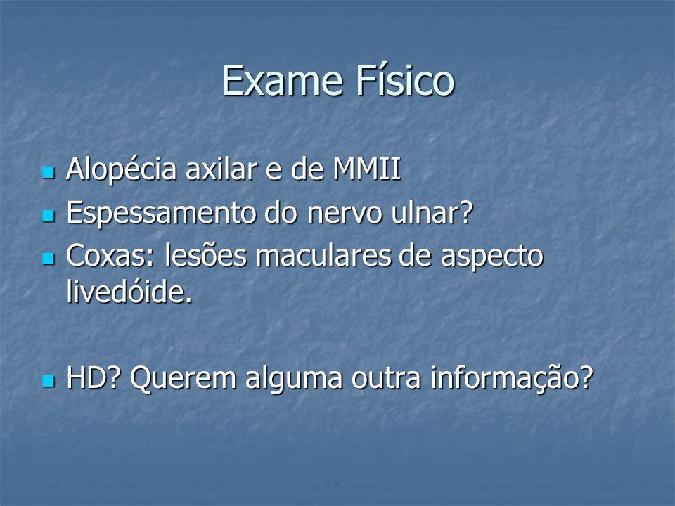 Exame Físico Alopécia axilar e de MMII Espessamento do nervo ulnar