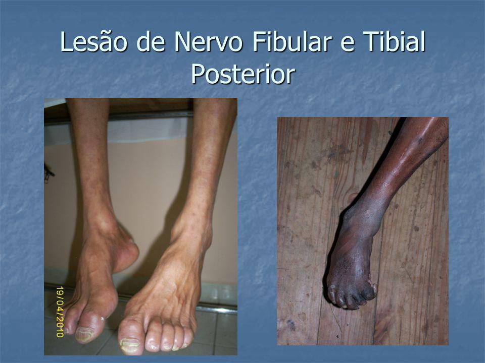 Lesão de Nervo Fibular e Tibial Posterior