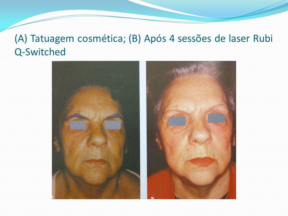 (A) Tatuagem cosmética; (B) Após 4 sessões de laser Rubi Q-Switched