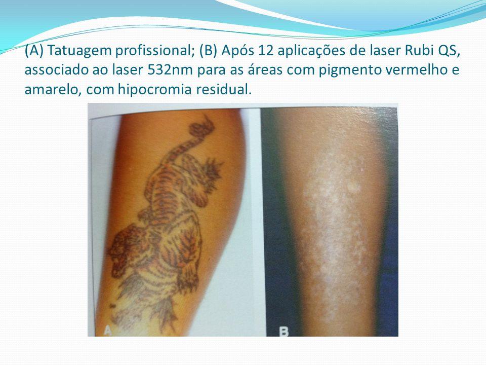 (A) Tatuagem profissional; (B) Após 12 aplicações de laser Rubi QS, associado ao laser 532nm para as áreas com pigmento vermelho e amarelo, com hipocromia residual.