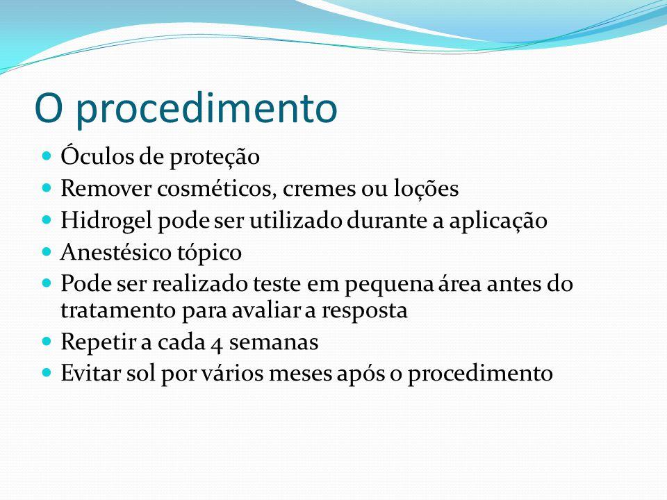 O procedimento Óculos de proteção Remover cosméticos, cremes ou loções