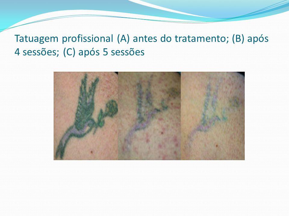 Tatuagem profissional (A) antes do tratamento; (B) após 4 sessões; (C) após 5 sessões