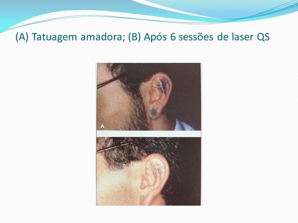 (A) Tatuagem amadora; (B) Após 6 sessões de laser QS