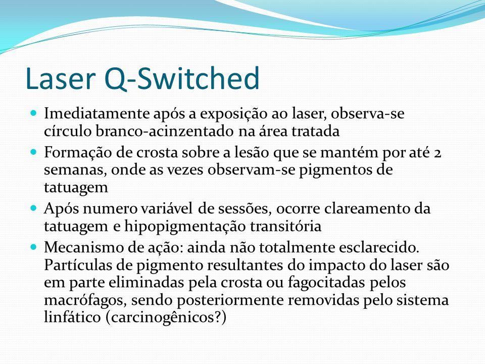 Laser Q-Switched Imediatamente após a exposição ao laser, observa-se círculo branco-acinzentado na área tratada.