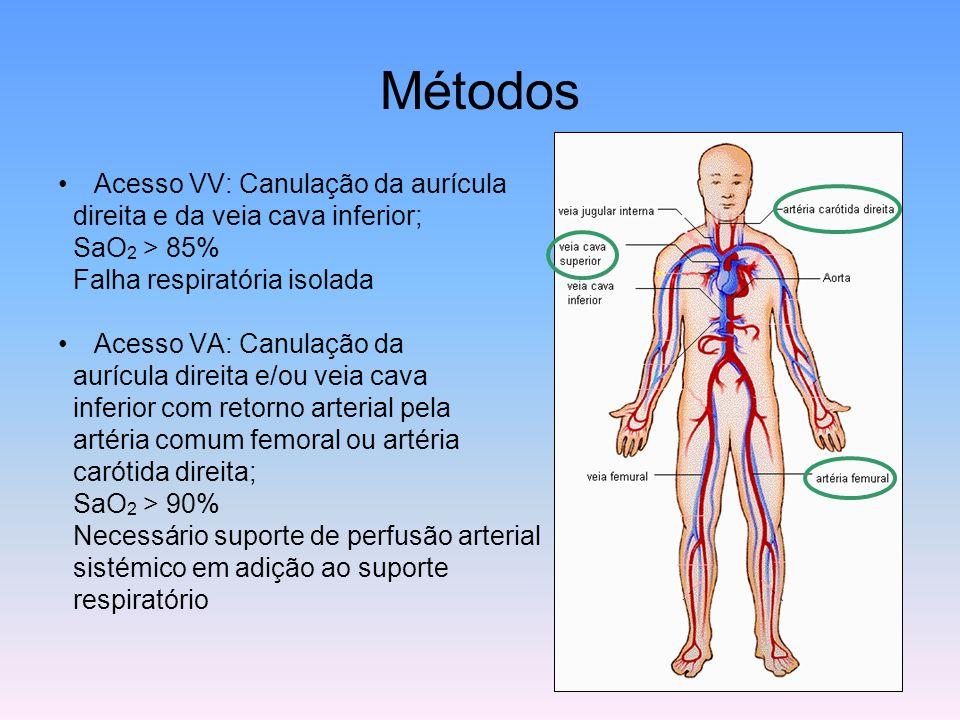 Métodos Acesso VV: Canulação da aurícula