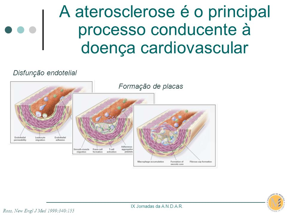 A aterosclerose é o principal processo conducente à doença cardiovascular