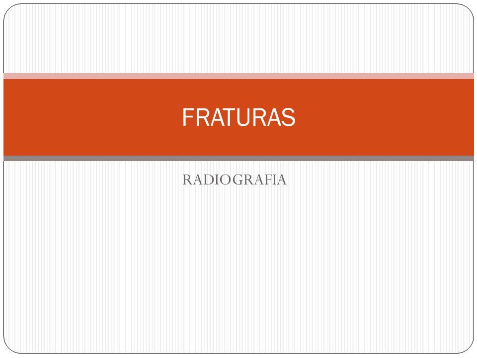 FRATURAS RADIOGRAFIA