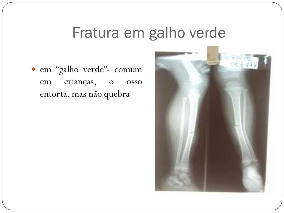 Fratura em galho verde em galho verde - comum em crianças, o osso entorta, mas não quebra