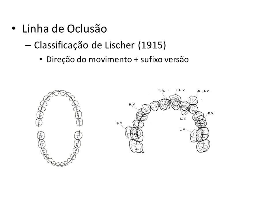 Linha de Oclusão Classificação de Lischer (1915)
