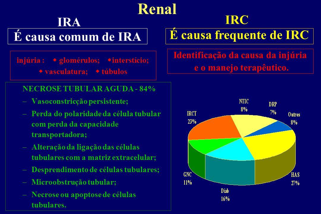Renal IRC IRA É causa comum de IRA É causa frequente de IRC