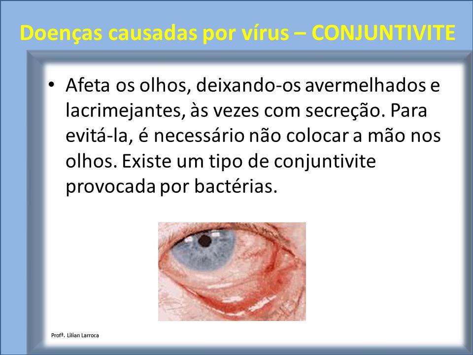 Doenças causadas por vírus – CONJUNTIVITE