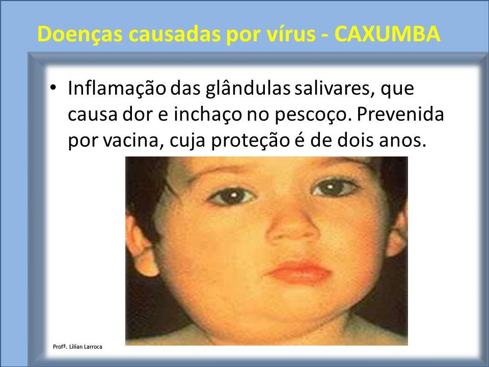 Doenças causadas por vírus - CAXUMBA