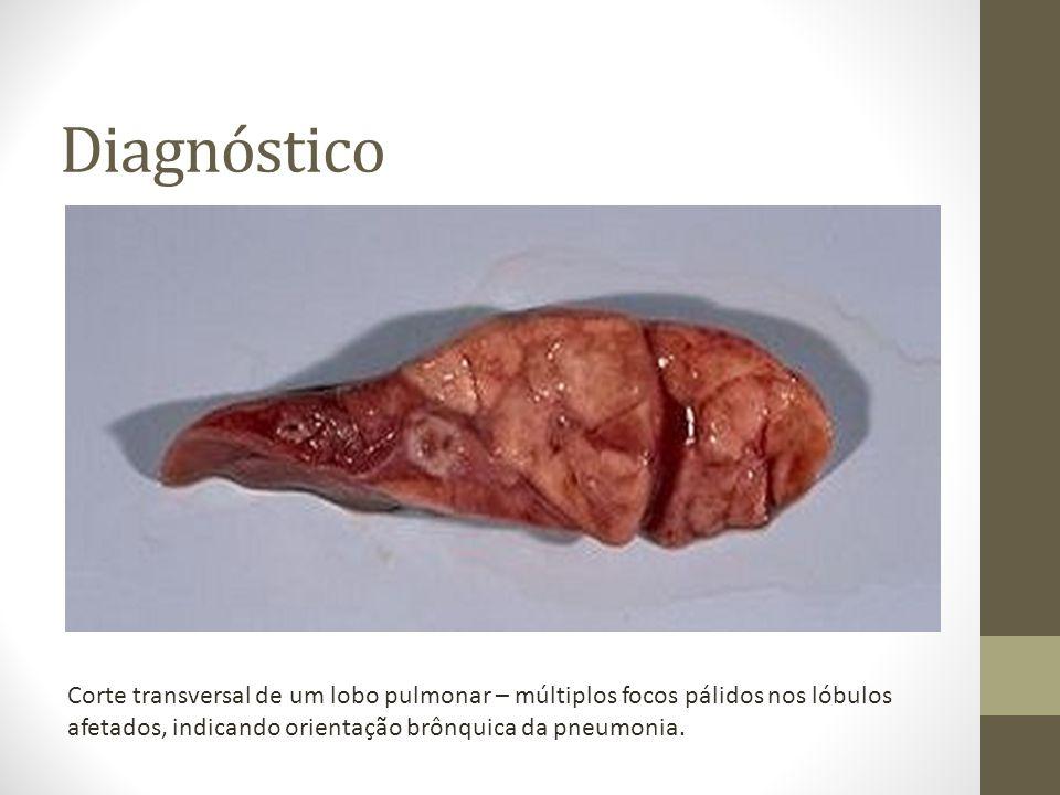 Diagnóstico Corte transversal de um lobo pulmonar – múltiplos focos pálidos nos lóbulos afetados, indicando orientação brônquica da pneumonia.