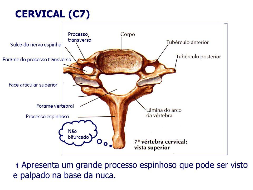 CERVICAL (C7)Processo transverso. Sulco do nervo espinhal. Forame do processo transverso. Face articular superior.