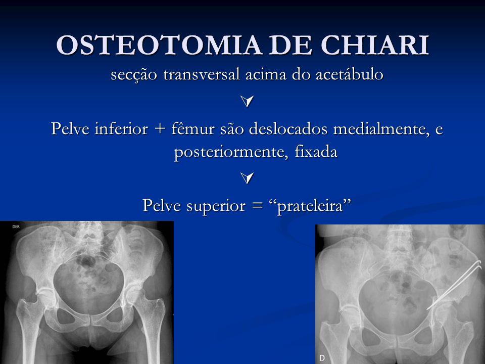 OSTEOTOMIA DE CHIARI secção transversal acima do acetábulo 