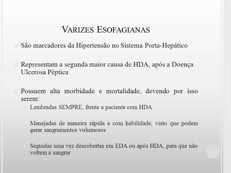 Varizes Esofagianas São marcadores da Hipertensão no Sistema Porta-Hepático.