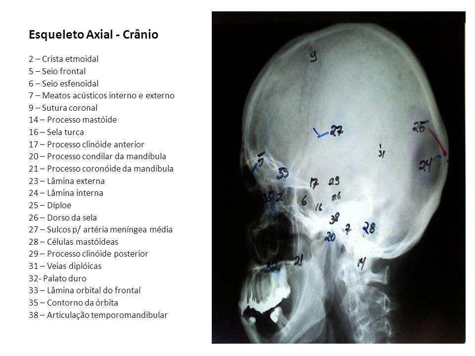 Esqueleto Axial - Crânio