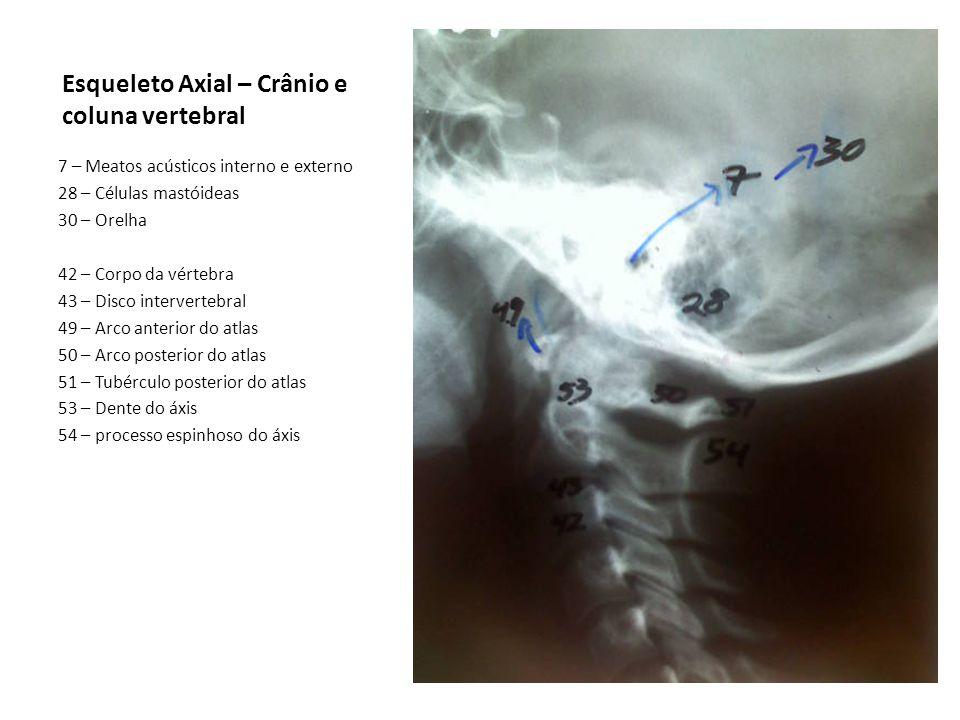 Esqueleto Axial – Crânio e coluna vertebral
