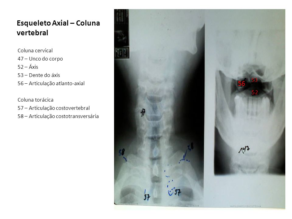 Esqueleto Axial – Coluna vertebral