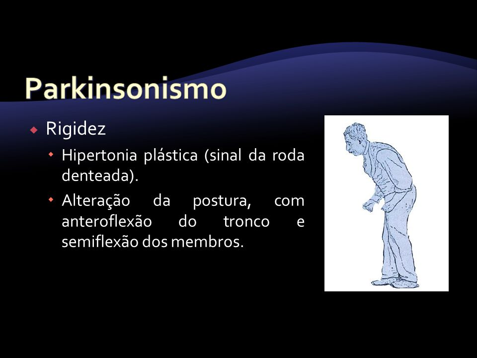 Parkinsonismo Rigidez Hipertonia plástica (sinal da roda denteada).