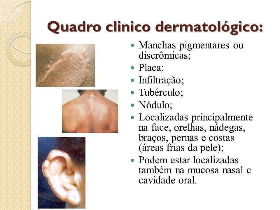 Quadro clinico dermatológico: