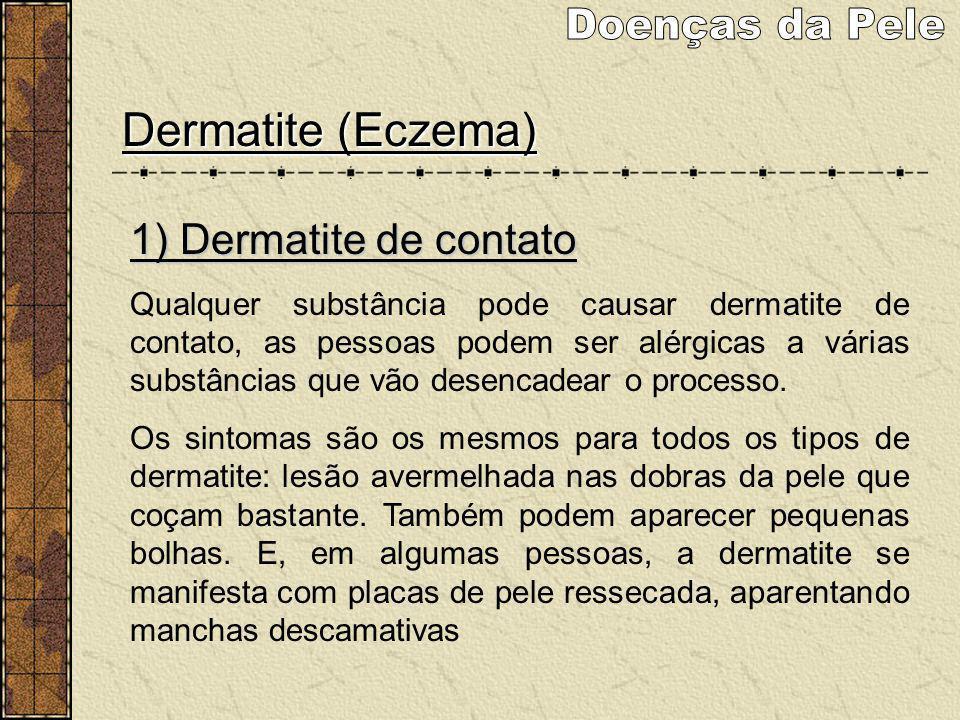 Doenças da Pele Dermatite (Eczema) 1) Dermatite de contato