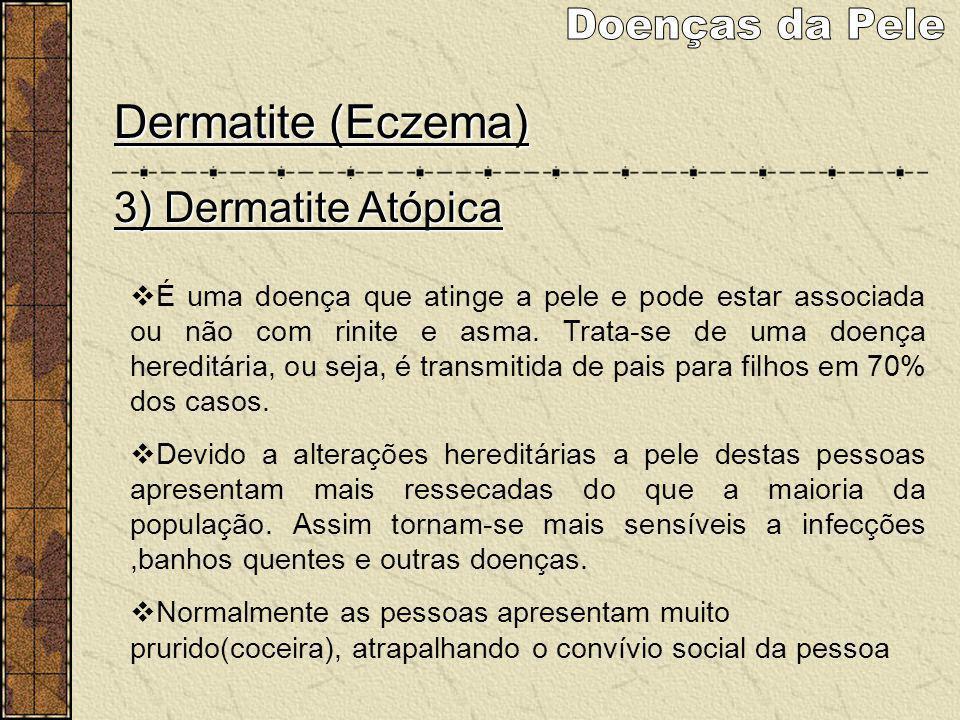 Doenças da Pele Dermatite (Eczema) 3) Dermatite Atópica
