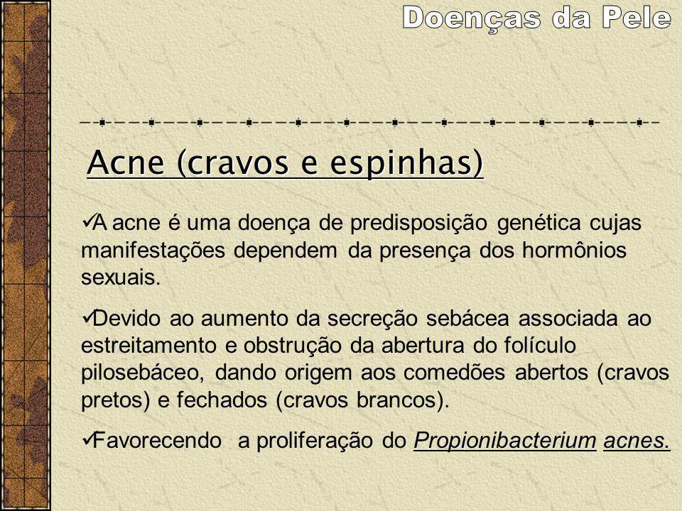 Doenças da Pele Acne (cravos e espinhas)