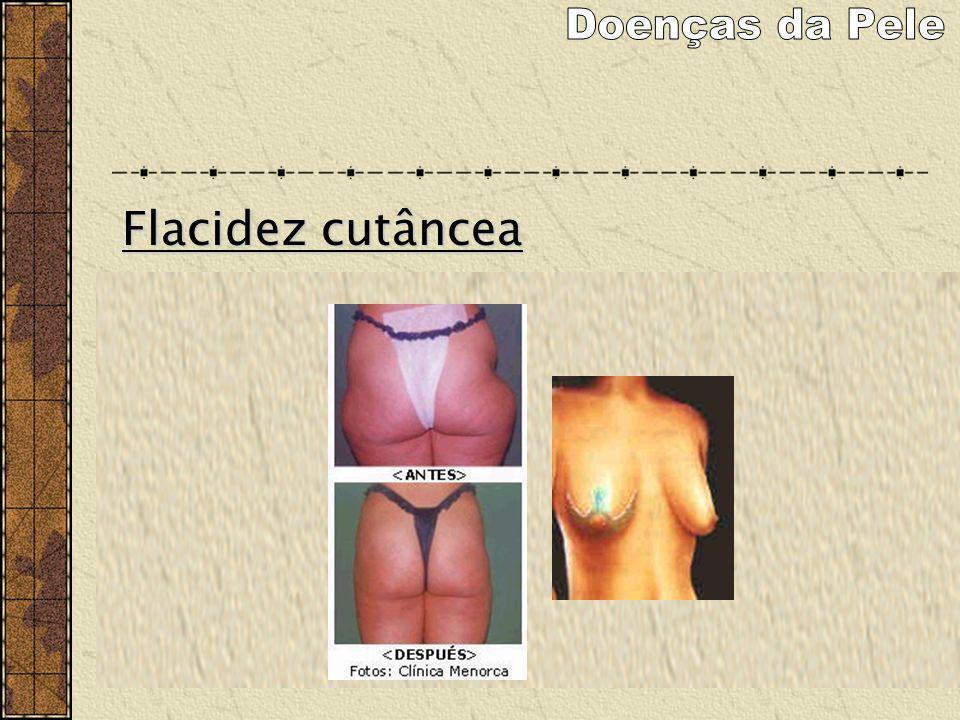 Doenças da Pele Flacidez cutâncea