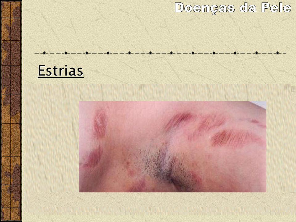 Doenças da Pele Estrias