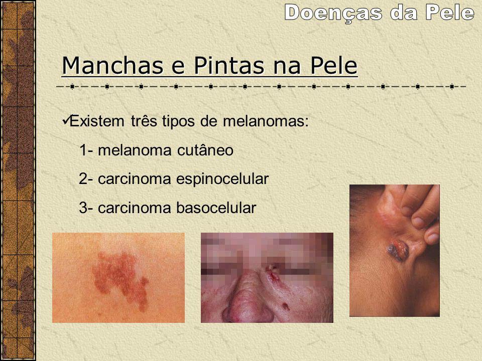Doenças da Pele Manchas e Pintas na Pele